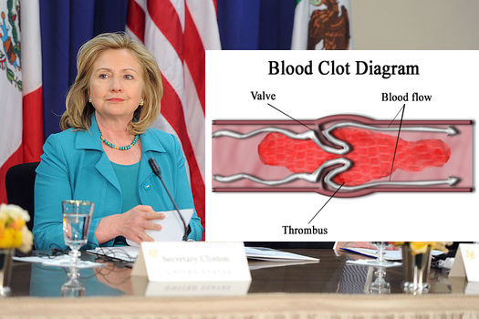 Clinton sitting next to a diagram of a blood clot