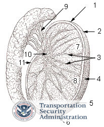 TSA Testicular Cancer